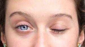 La parálisis de Bell es una de las primeras causas de parálisis facial